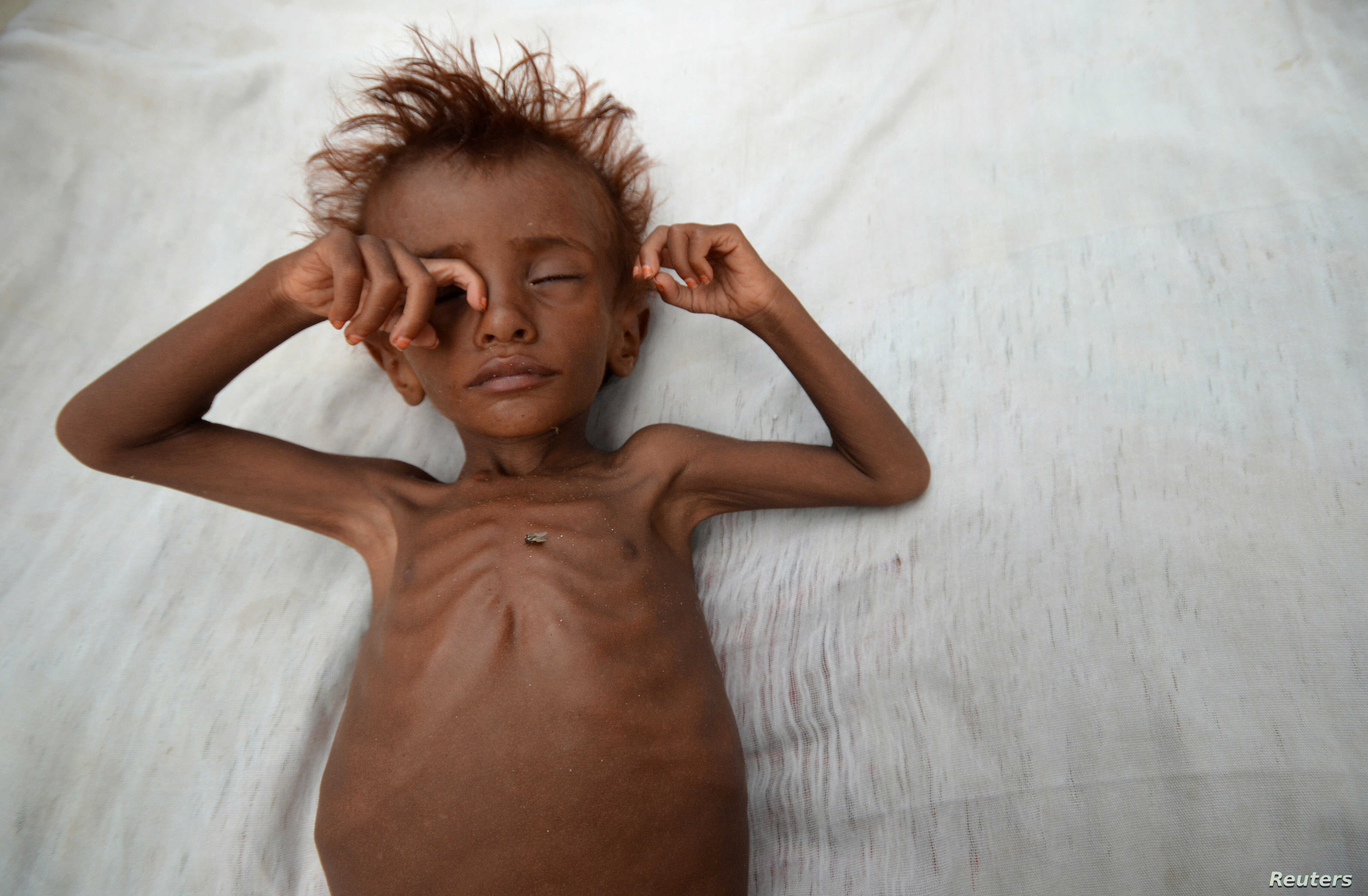 A malnourished boy lies on a bed outside his family's hut in al-Tuhaita district of the Red Sea province of Hudaydah, Yemen September 26, 2016.