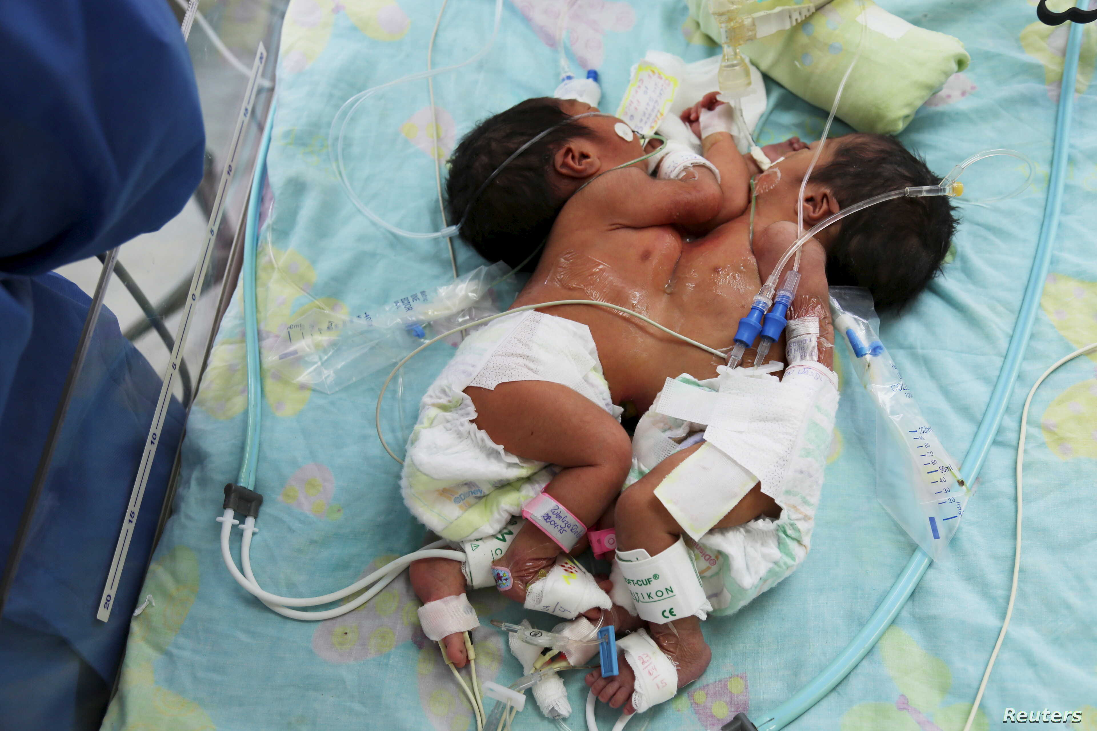 Conjoined Twin Girls Born in India | Voice of America - English