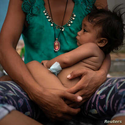 Estephanie, a one year old migrant girl from Honduras, is held by her mother while resting amid thousands from Central America en route to the United States, in Huixtla, Mexico, Oct. 23, 2018.