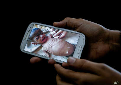 A doctor shows on her mobile phone a photo of Fadl, an 8-month-old Yemeni boy taken in his last days before he starved to death, in this Feb. 10, 2018 photo at a hospital in Mocha, Yemen.