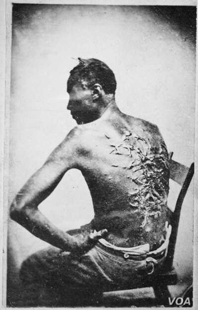 """The original caption on this 1863 photograph of a slave read: """"Overseer Aarayou Carrier whipped me. I was two months in bed sore from the whipping. My master come after I was whipped; he discharged the overseer."""" (image courtesy of the National Archi..."""