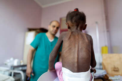 A nurse looks as he weighs a malnourished girl at a malnutrition treatment center in Sanaa, Yemen, Oct. 7, 2018.