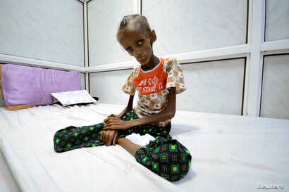 Saida Ahmad Baghili, 18, who is affected by severe acute malnutrition, sits on a bed at the al-Thawra hospital in the Red Sea port city of Houdieda, Yemen, Oct. 24, 2016.