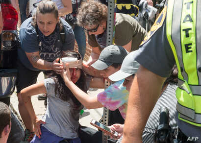 People receive first-aid after a car accident ran into a crowd of protesters in Charlottesville, VA on August 12, 2017.