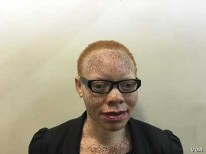 Tapiwa Gwen Marange, a 34-year-old albino woman, says more education is needed for Zimbabwe traditional healers to stop promoting myths that HIV-positive men get cured if they have sexual intercourse with an albino woman. Another myth: that albinism ...