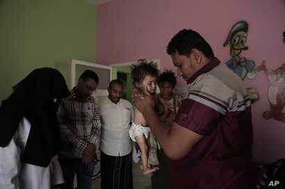 Staff weigh Galila, a 9-month old Yemeni girl who suffers from malnutrition and malaria, at the Stabilization Nutritional Therapeutic center in al-Khoukha, Yemen, Feb. 12, 2018.
