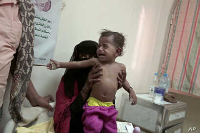 Umm Molham, a Yemeni mother who is herself undernourished, struggles to hold up her malnourished 13-month-old son Molham at the Ibn Kholdoon Hospital, in Lahj, Yemen, Feb. 11, 2018.
