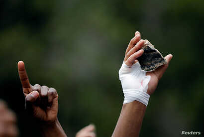 A student with a bandaged hand holds a rock during clashes with police over high tuition fees at Johannesburg's University of the Witwatersrand, South Africa, October 4, 2016.