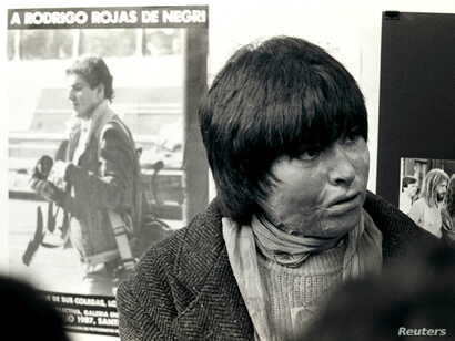 FILE - Carmen Gloria Quintana is seen near her home in Santiago in July of 1987. Quintana, then 18 years old, suffered burns over 65 percent of her body at the hands of a Chilean army patrol on July 2, 1986 in one of the worst incidents of violence d...