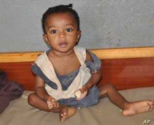Malnourished child at Dill Hospital, southern Ethiopia