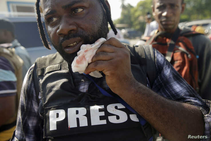 Photojournalist Dieu Nalio Chery holds a healing gauze next to his mouth in Port-au-Prince, Haiti, September 23, 2019.
