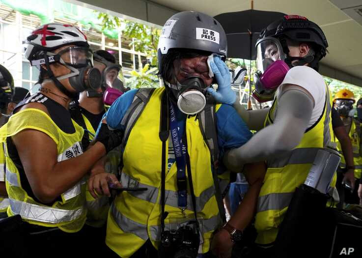 FILE - AN injured journalist, center, is attended to by colleagues, in Hong Kong, Sept. 29, 2019.