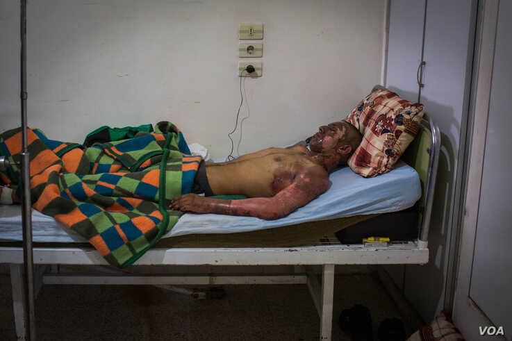 Hussain, 19, was burnt when a bomb dropped from a  airplane near him and his friends, says his sister, an YPJ fighter on Oct. 18, 2019 in Hasseka, Syria. (VOA/Yan Boechat)