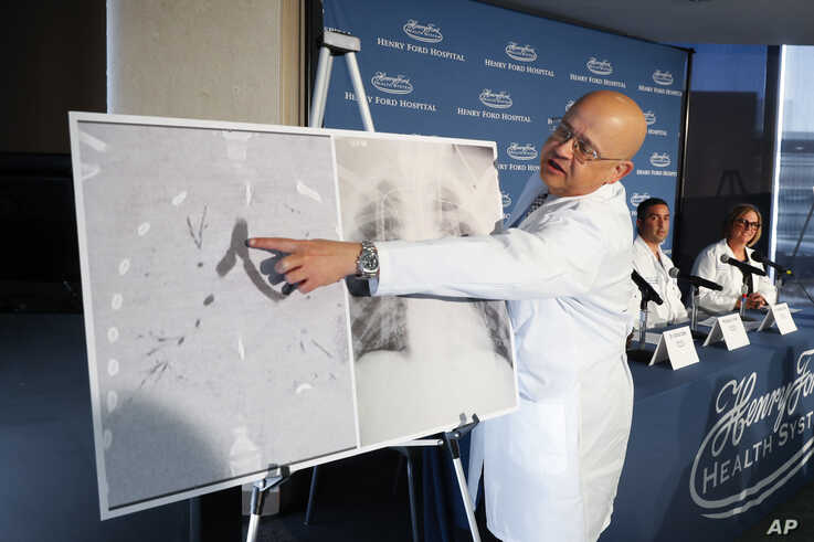 Dr. Hassan Nemeh, Surgical Director of Thoracic Organ Transplant, shows areas of a patient's lungs during a news conference at…