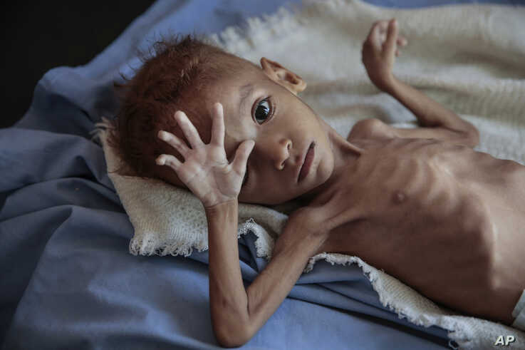FILE - A severely malnourished boy rests on a hospital bed at the Aslam Health Center, Hajjah, Yemen, Oct. 1, 2018.